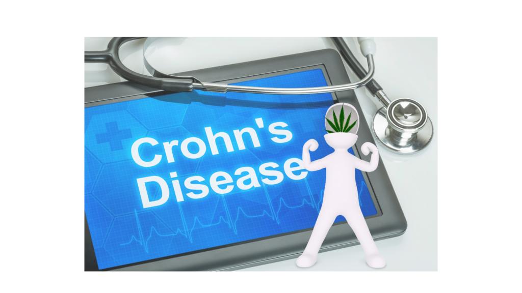 crohn-betegség,kannabisz,cbd