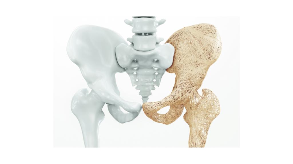 csontritkulás, menopauza