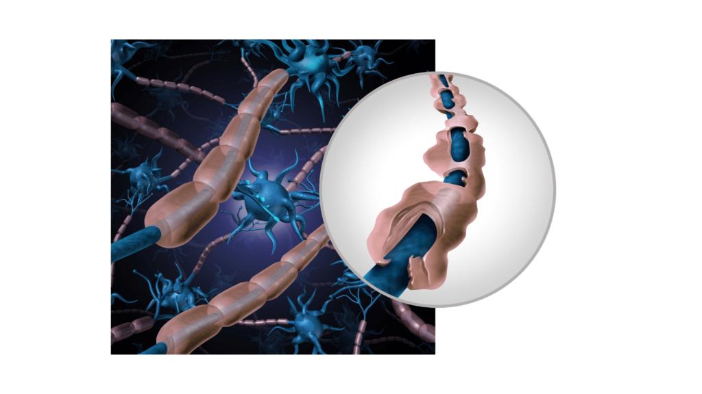 szklerózi multiplex cbd