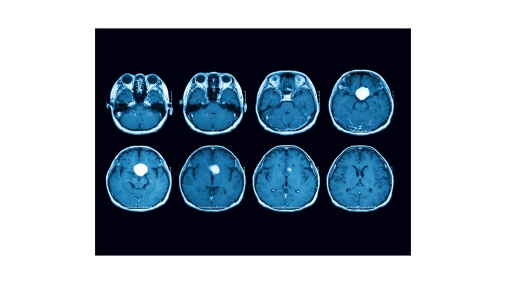 thc cbd használata agydaganatra, kannabisz használata agydaganatra