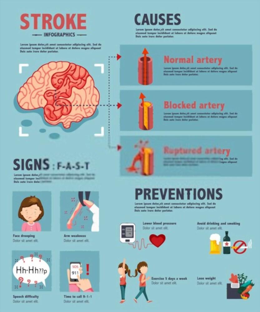 CBD hatása a stroke-ra